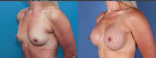 Breast Augmentation Gallery - Patient 58195640 - Image 2