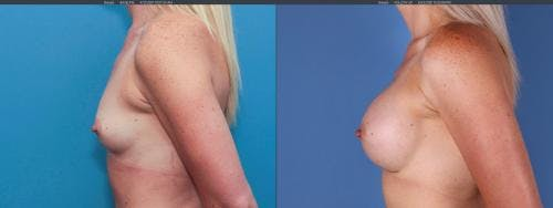 Breast Augmentation Gallery - Patient 58195640 - Image 3