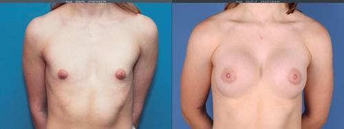 Breast Augmentation Gallery - Patient 58195642 - Image 1