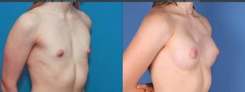 Breast Augmentation Gallery - Patient 58195642 - Image 2