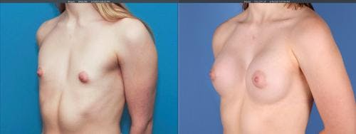Breast Augmentation Gallery - Patient 58195642 - Image 3