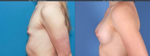 Breast Augmentation Gallery - Patient 58195642 - Image 4