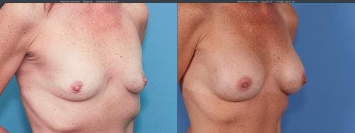 Breast Augmentation Gallery - Patient 58195643 - Image 1