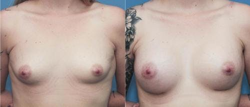 Breast Augmentation Gallery - Patient 58195645 - Image 1