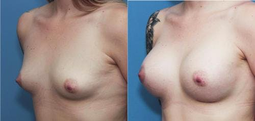 Breast Augmentation Gallery - Patient 58195645 - Image 2