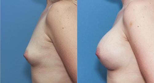 Breast Augmentation Gallery - Patient 58195645 - Image 3