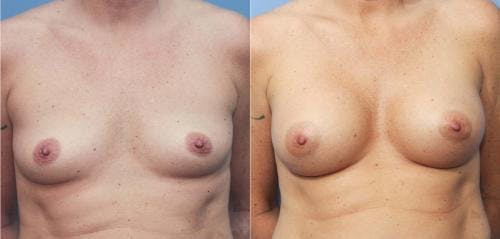 Breast Augmentation Gallery - Patient 58213170 - Image 1