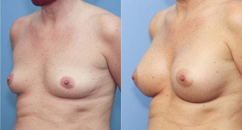 Breast Augmentation Gallery - Patient 58213170 - Image 2