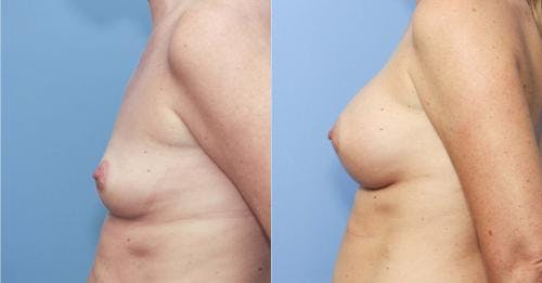 Breast Augmentation Gallery - Patient 58213170 - Image 3