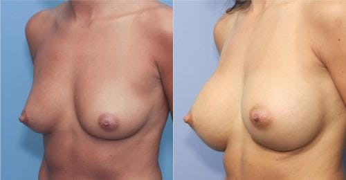 Breast Augmentation Gallery - Patient 58213172 - Image 2