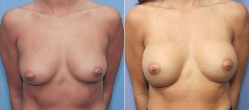 Breast Augmentation Gallery - Patient 58213172 - Image 1