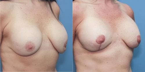Breast Augmentation Gallery - Patient 58213172 - Image 3