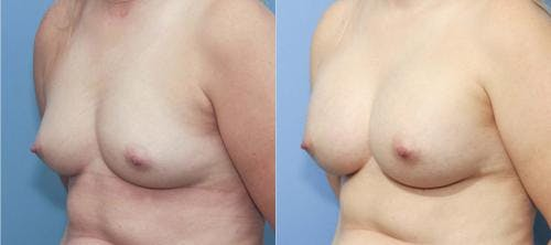 Breast Augmentation Gallery - Patient 58213173 - Image 2