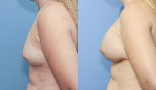 Breast Augmentation Gallery - Patient 58213173 - Image 3