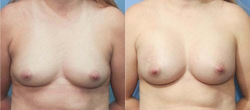 Breast Augmentation Gallery - Patient 58213173 - Image 1