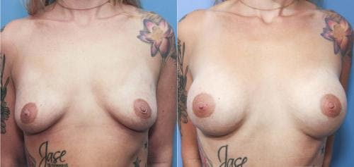 Breast Augmentation Gallery - Patient 58213174 - Image 1