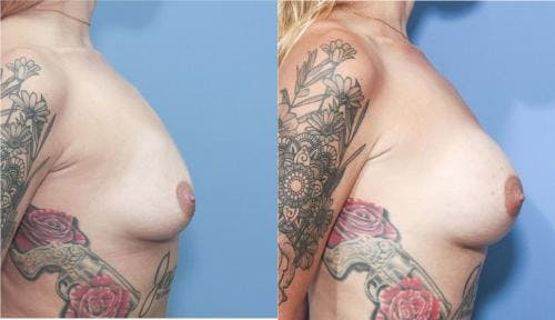 Breast Augmentation Gallery - Patient 58213174 - Image 2
