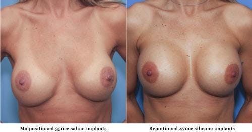Breast Augmentation Gallery - Patient 58213175 - Image 1