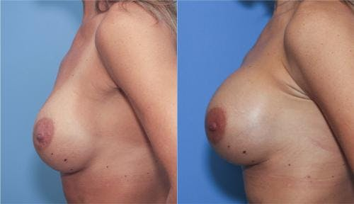 Breast Augmentation Gallery - Patient 58213175 - Image 2