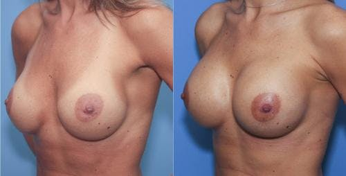 Breast Augmentation Gallery - Patient 58213175 - Image 3
