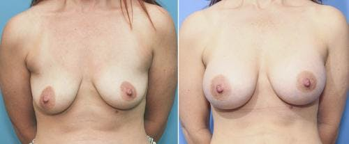 Breast Augmentation Gallery - Patient 58213178 - Image 1