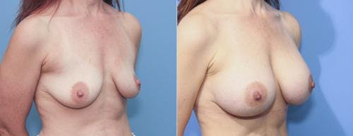 Breast Augmentation Gallery - Patient 58213178 - Image 2