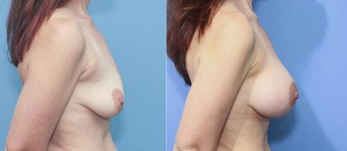 Breast Augmentation Gallery - Patient 58213178 - Image 3