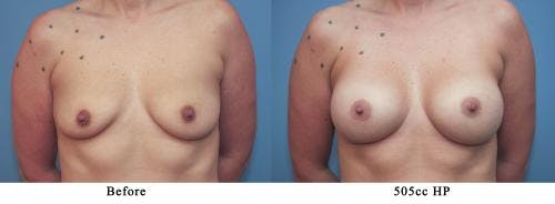 Breast Augmentation Gallery - Patient 58213179 - Image 1