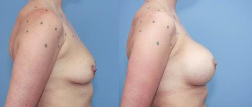 Breast Augmentation Gallery - Patient 58213179 - Image 2
