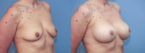 Breast Augmentation Gallery - Patient 58213179 - Image 3