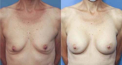 Breast Augmentation Gallery - Patient 58213182 - Image 1
