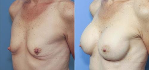 Breast Augmentation Gallery - Patient 58213182 - Image 2