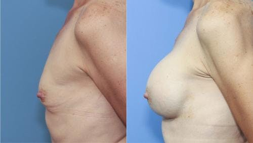 Breast Augmentation Gallery - Patient 58213182 - Image 3