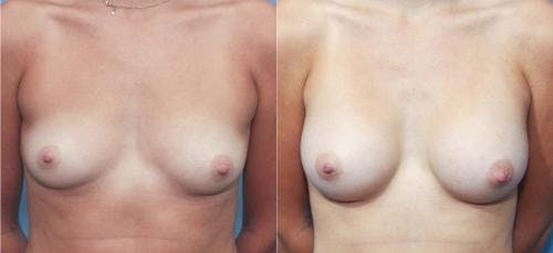 Breast Augmentation Gallery - Patient 58213185 - Image 1