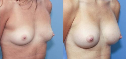 Breast Augmentation Gallery - Patient 58213185 - Image 2
