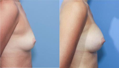Breast Augmentation Gallery - Patient 58213185 - Image 3