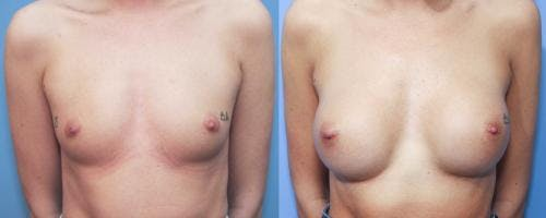 Breast Augmentation Gallery - Patient 58213187 - Image 1