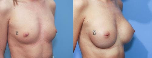Breast Augmentation Gallery - Patient 58213187 - Image 2