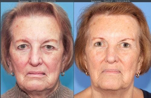 Eyelid Surgery Gallery - Patient 58213186 - Image 1