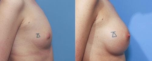Breast Augmentation Gallery - Patient 58213187 - Image 3