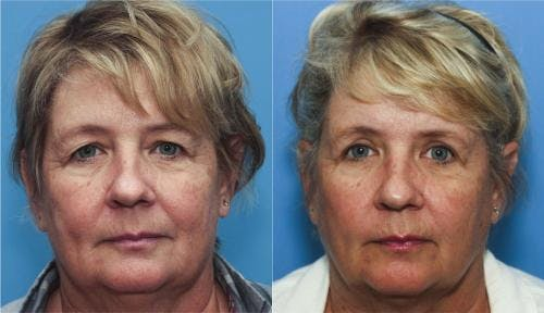 Eyelid Surgery Gallery - Patient 58213188 - Image 1