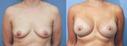 Breast Augmentation Gallery - Patient 58213190 - Image 1