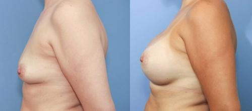 Breast Augmentation Gallery - Patient 58213190 - Image 2