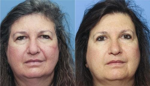 Eyelid Surgery Gallery - Patient 58213189 - Image 1