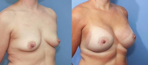 Breast Augmentation Gallery - Patient 58213190 - Image 3
