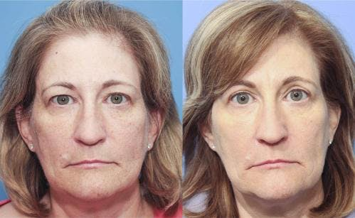 Eyelid Surgery Gallery - Patient 58213191 - Image 1