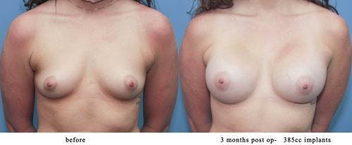 Breast Augmentation Gallery - Patient 58213192 - Image 1