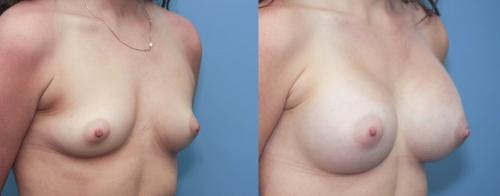 Breast Augmentation Gallery - Patient 58213192 - Image 3