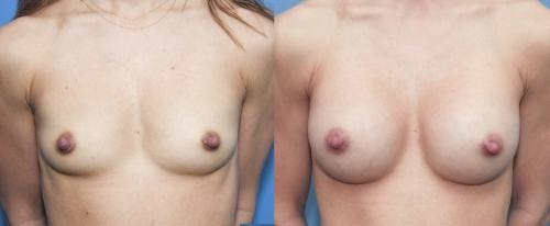 Breast Augmentation Gallery - Patient 58213196 - Image 1