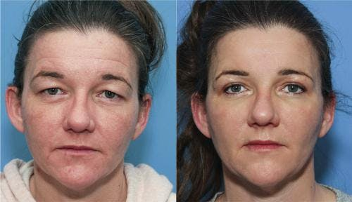 Eyelid Surgery Gallery - Patient 58213195 - Image 1